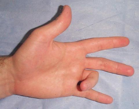 распух сустав большого пальца
